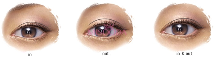 WHY Korean Eyelid Surgery? Guide, Reviews, Images, Promotions | MISOODA