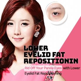 Lower Eyelid Fat Repositioning