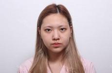 Nose Augmentation + Face Liposuction
