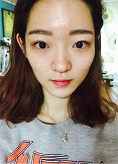 Face contouring + Rhinoplasty + Eyelid revision Surgery