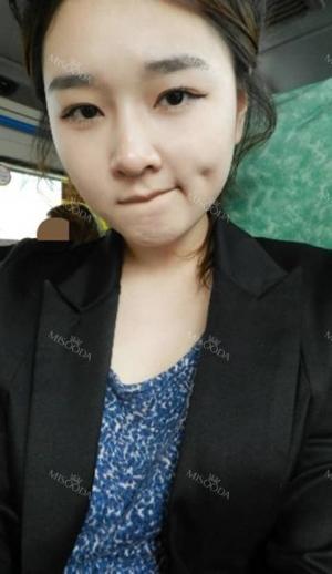 Low Nose Surgery