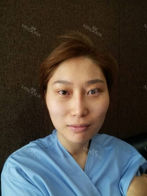 Scarless Smooth Face Line with Endoscopic Face Contouring by Romian