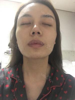 3-type-of-facial-contour-surgery