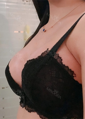 Breast Augmentation - after 2 weeks