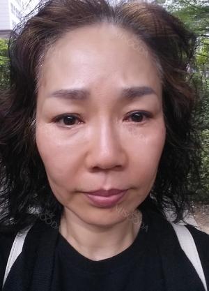 eye, nose, face lifting, fat grafting, botox