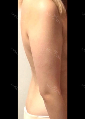 Arm Liposuction with Pretty Body Clinic