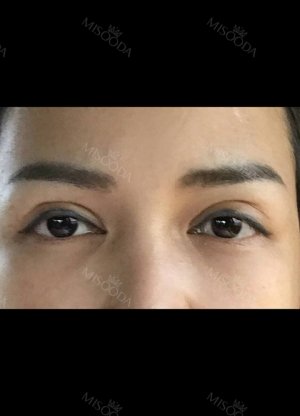 Review the 365000 costing eyes revision