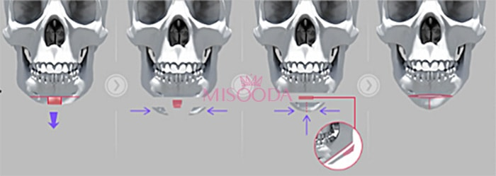 short chin reduction surgery in Korea