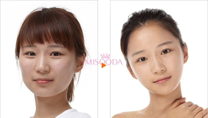 cheekbone rediction surgery in korea