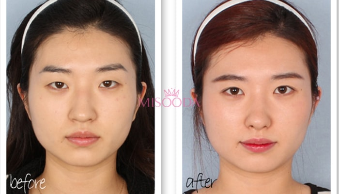 Why Korean Nose Surgery Guide Reviews Images