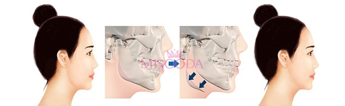 square jaw reduction surgery in Korea