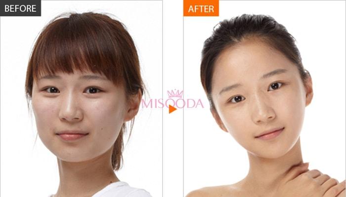 facial contouring surgery in korea
