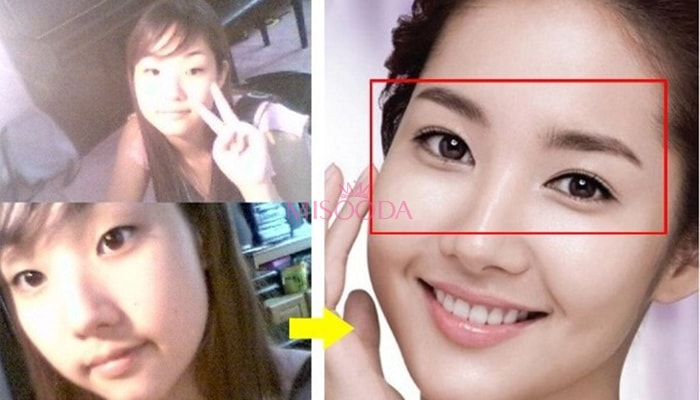 WHY Korean Eyelid Surgery? Guide, Reviews, Images