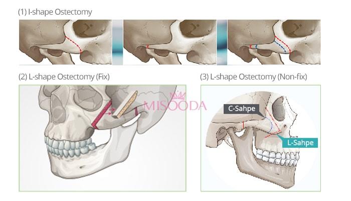 types of cheekbone reduction surgery in korea