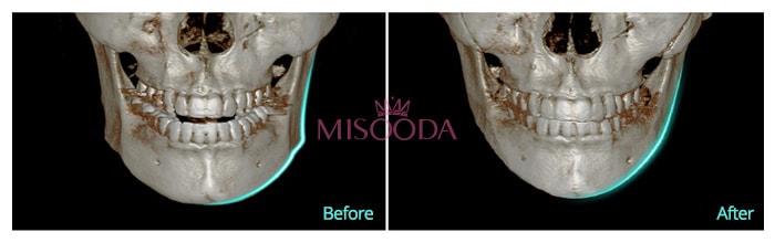 mandible ostectomy in Koera