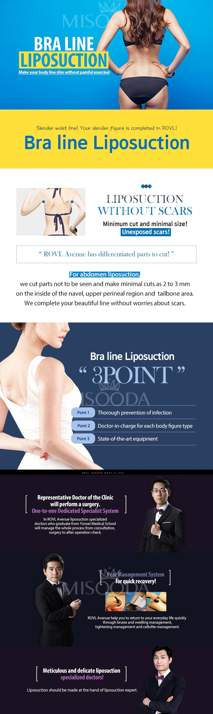 Bra Line Liposuction