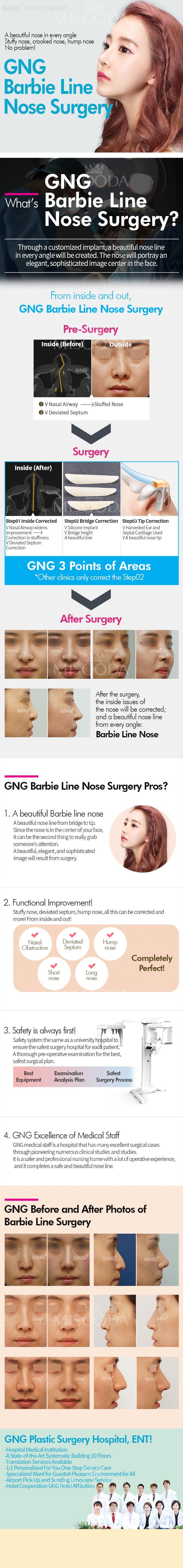 Barbie  Line Nose Surgery