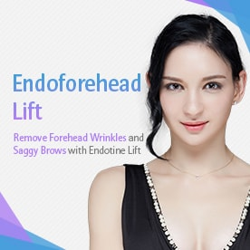 Endoforehead lift