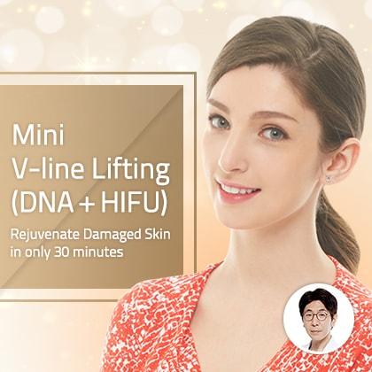 Mini V-line Lifting(DNA +HIFU)