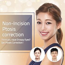 Non incision Ptosis correction