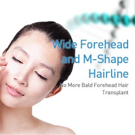 Wide Forehead and M-Shape Hairline