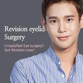 MEGA Revision eyelid surgery