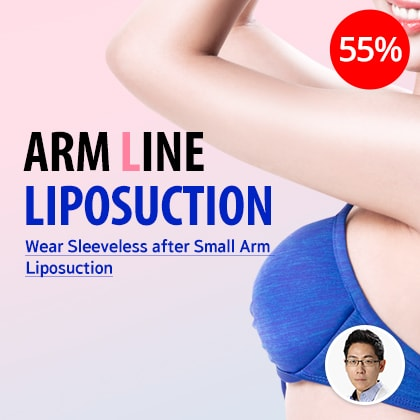 Arm Line Liposuction