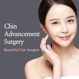 Mega Chin Advancement Surgery
