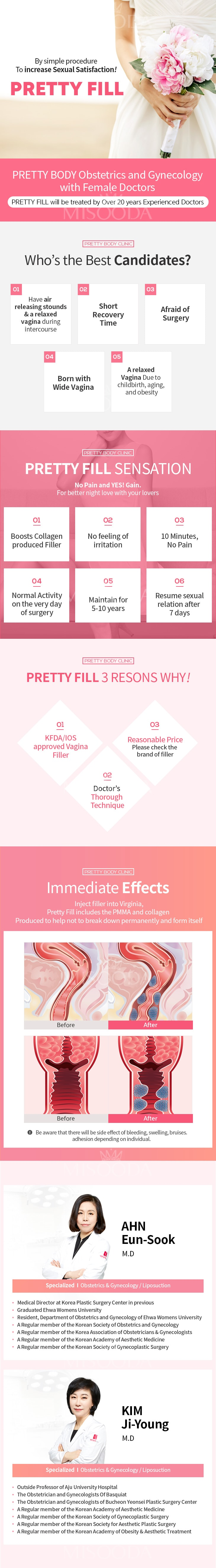 PRETTY BODY CLINIC : Pretty Fill (Vagina Filler)