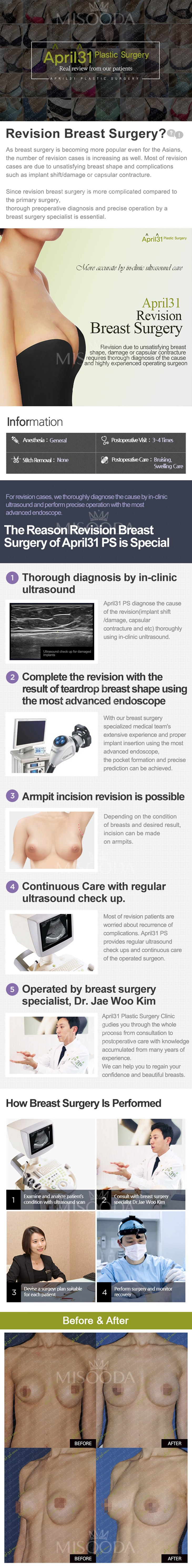 April 31 : Revision Breast Surgery