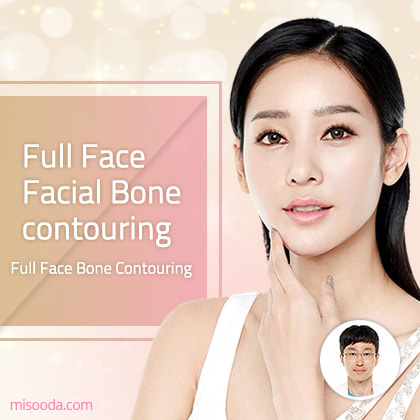 Full Face Facial Bone contouring