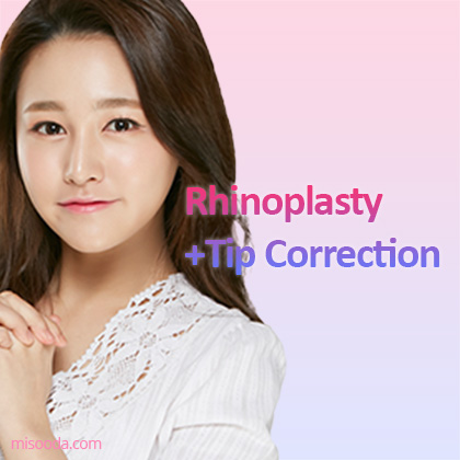 Rhinoplasty+ Tip correction