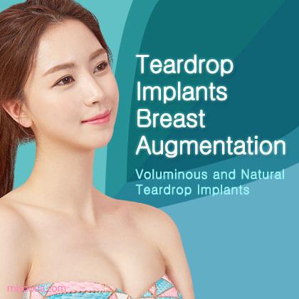Teardrop Implants Breast Augmentation