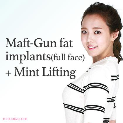 Maft-Gun fat implants(full face)+Mint Lifting
