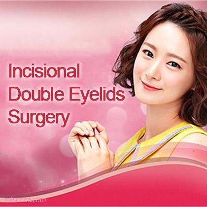 Incisional Double Eyelids & Canthoplasty