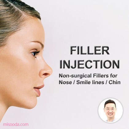 Filler Injection
