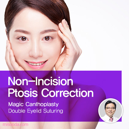 Non-Incision Ptosis Correction with CanthoplastyㅣMISOODA