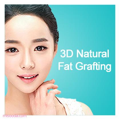3D Natural Fat Grafting