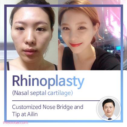 Rhinoplasty(Nasal septal cartilage)
