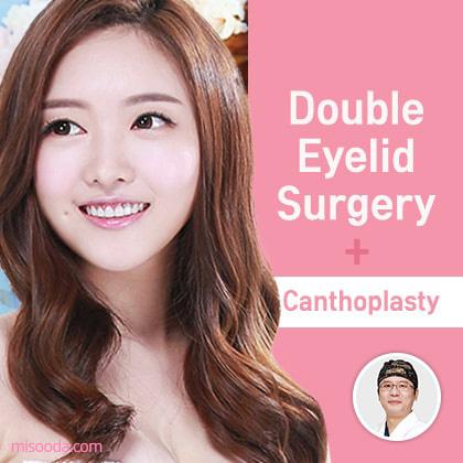Double Eyelid Surgery+Canthoplasty