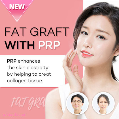 Fat Graft With PRP