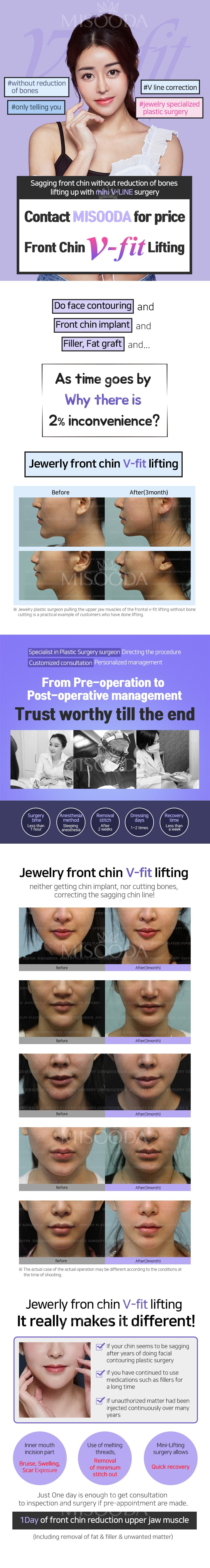 Front Chin V-fit Lifting (Contact MISOODA for price)