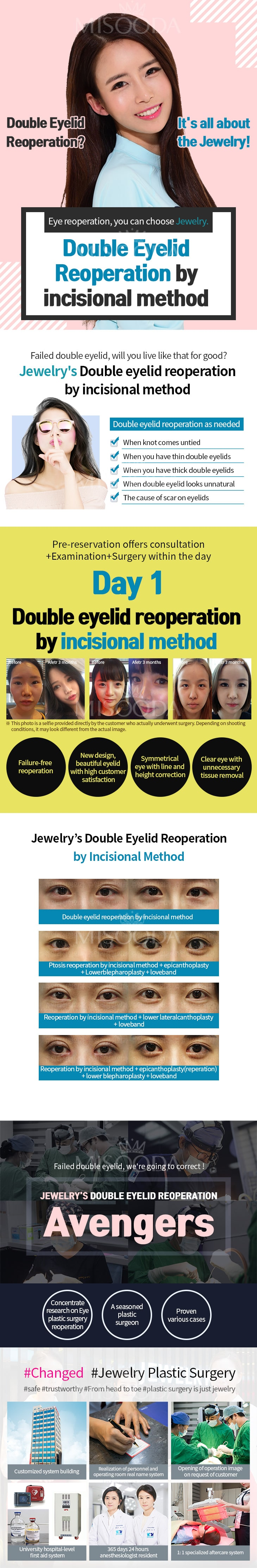 Double Eyelid Reopreation by incisional method (Contact MISOODA for price)