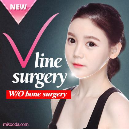 V-line Surgery (W/O bone Surgery)