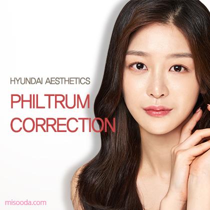 Philtrum Correction