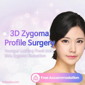 3D Zygoma Profile Surgery
