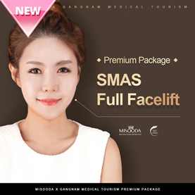 SMAS Full Facelift