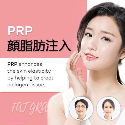 PRP顔脂肪注入