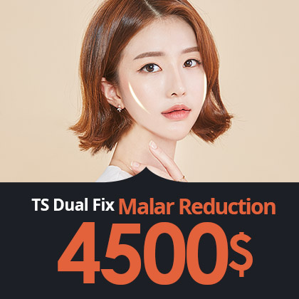 Dual Fix Malar Reduction
