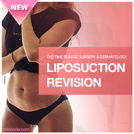 Liposuction Revision